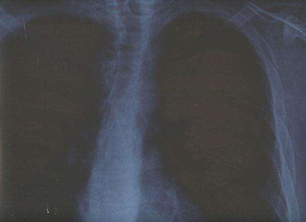 After Cancer X-Ray