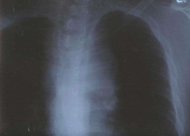 Before Cancer X-Ray